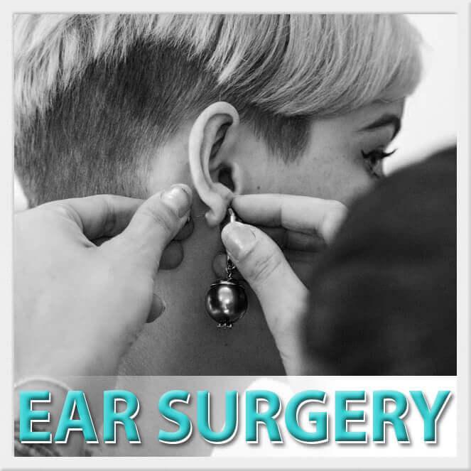 mexico cosmetic center, ear surgery