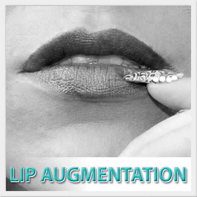 mexico cosmetic center, lip augmentation