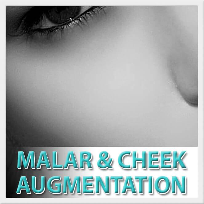 mexico cosmetic center, malar and cheek augmentation