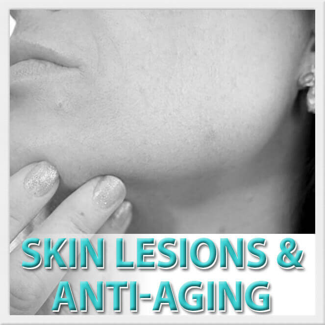 mexico cosmetic center, skin lesions and anti-aging