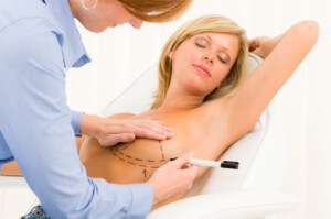Cost of Breast Implants in Mexico - Breast Implants