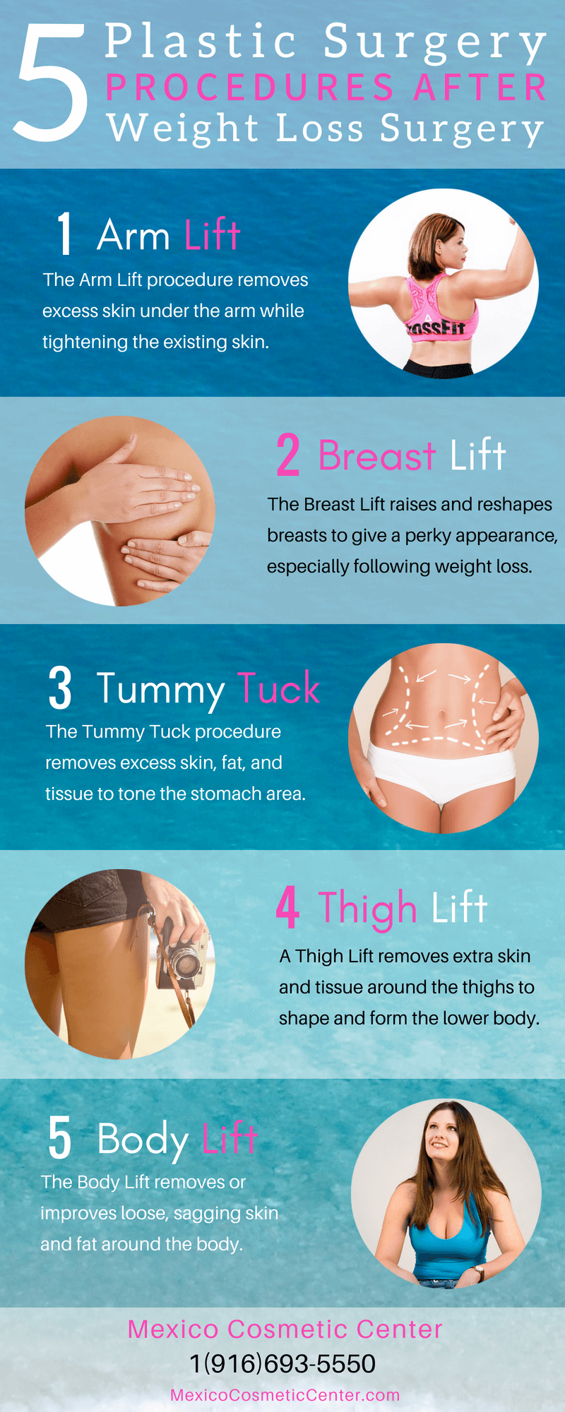5 Plastic Surgery Procedures After Weight Loss Surgery Infographic
