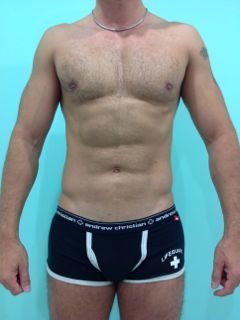Mexico Cosmetic Center - Abdominal Etching in Mexico After