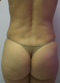 Mexico Cosmetic Center - After Brazilian Butt Lift