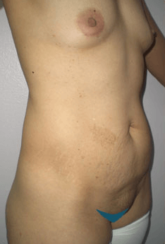 Mexico Cosmetic Center - Abdominoplasty and Breast Lift in Mexico Before