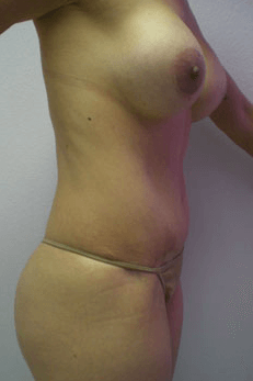 Mexico Cosmetic Center - Abdominoplasty and Breast Lift in Mexico After