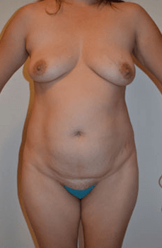 Mexico Cosmetic Center - Abdominoplasty Before
