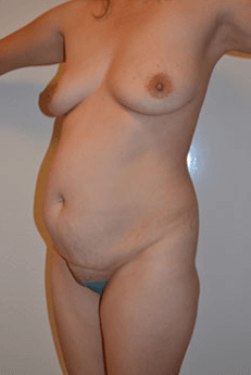 Mexico Cosmetic Center - Abdominoplasty in Mexico Before