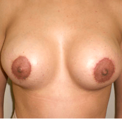 Mexico Cosmetic Center - After Breast Implants in Mexico