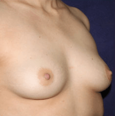 Mexico Cosmetic Center - Before Breast Implants in Mexico