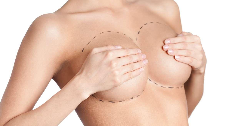 Breast Augmentation in Mexico
